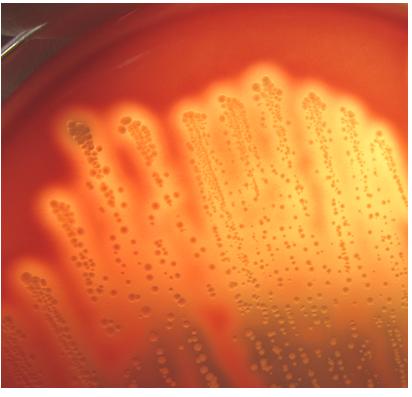感染 経路 溶連菌
